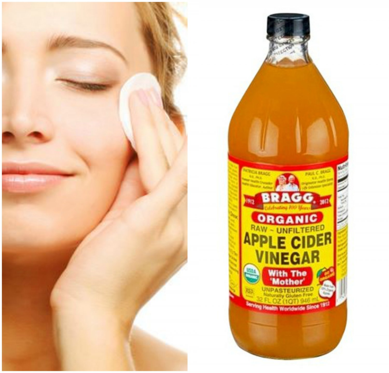 5 Steps To Get Flawless Skin Using ACV