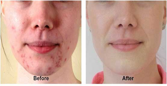 Amazing Natural Acne Remedies