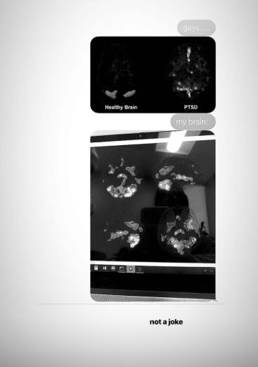 Ariana Grande Shares #8220;Terrifying#8221; Image Of Brain Scan Showing Her PTSD
